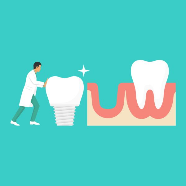 Dental Implants Can Replace Your Tooth Roots And Missing Teeth